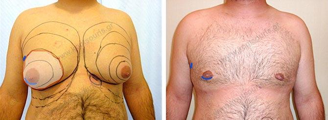 Το Αποτέλεσμα της επέμβασης γυναικομαστίας πριν και μετά το χειρουργείο.