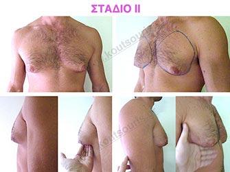 Συμπτώματα του δεύτερου σταδίου γυναικομαστίας.