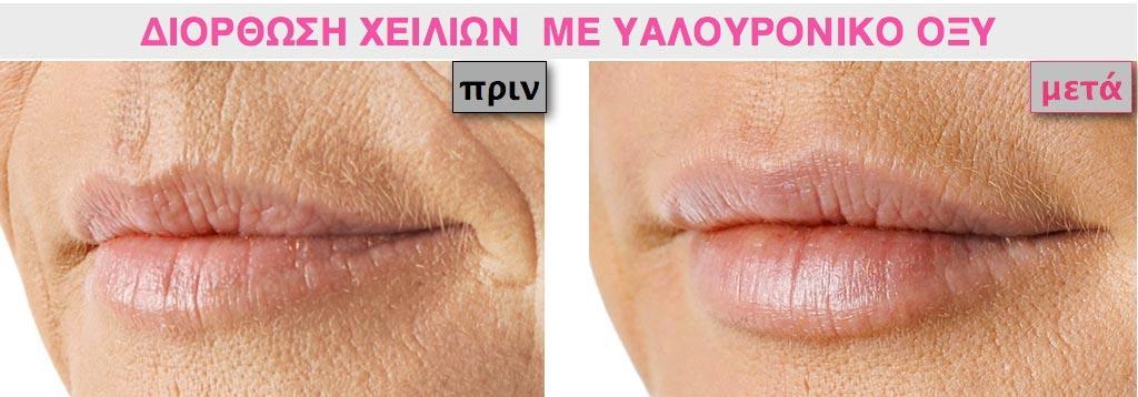 Διόρθωση σε γυναικεία χείλη