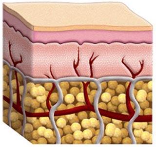 κυτταρίτιδα