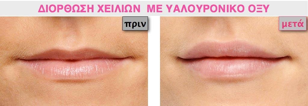 Παράδειγμα με γυναικεία πολύ λεπτά χείλη
