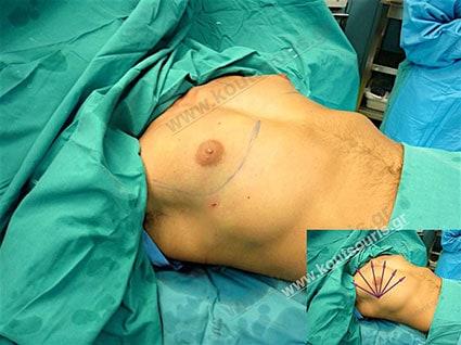 gynecomastia-31