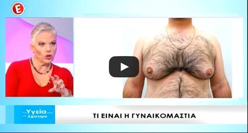 νανα-παλαιτσακη-γυναικομαστία-εψιλον