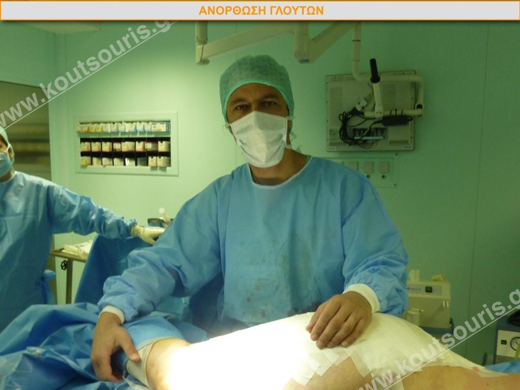 Φωτογραφία από ανόρθωση γλουτών στο χειρουργείο