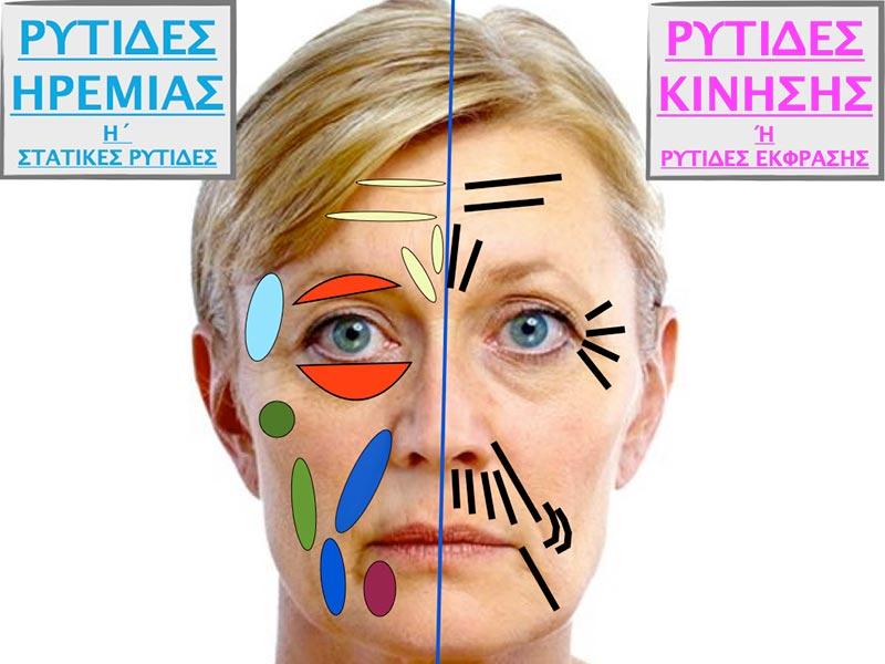 Βαθειές συνήθως ρυτίδες σε ολοκληρο το πρόσωπο