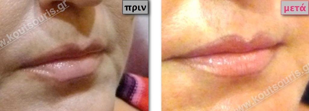 Μικρά και ατροφικά χείλη μετά την πλαστική.