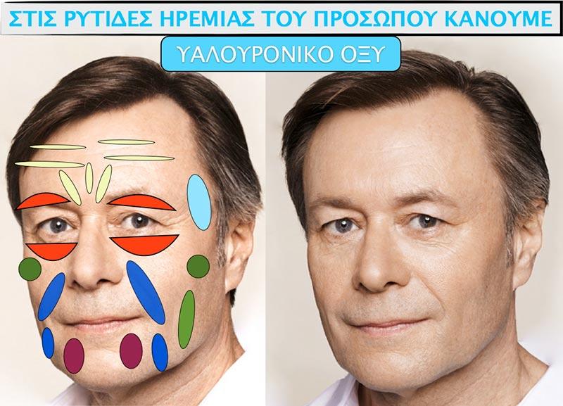 Πλαστική προσώπου σε ανδρικό πρόσωπο με υαλουρονικό οξύ