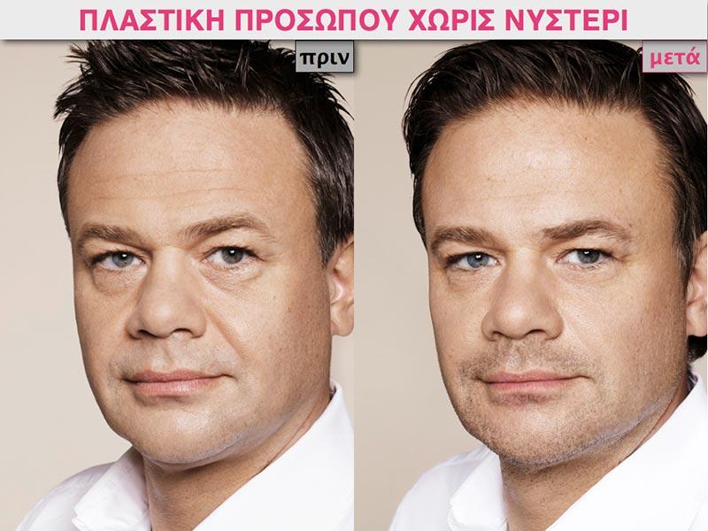 πλαστικη-προσωπο-χωρίς-χειρουργείο