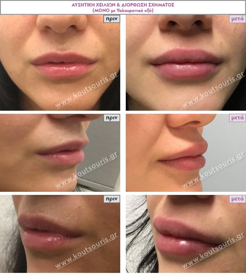 Άτομο με ρυτίδες στο άνω χείλος