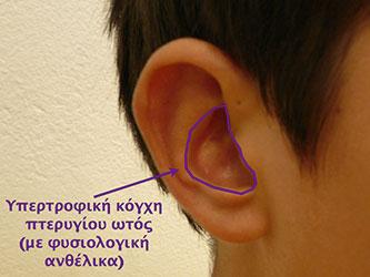 Υπερτροφική κόγχη πτερυγίου ωτός (με φυσιολογική ανθέλικα).