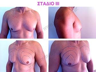 Στάδιο ΙΙΙ: μέση προς μεγάλη υπερτροφία του αδένα χωρίς σημαντική πτώση του μαστού-μέτρια λιπομαστία.