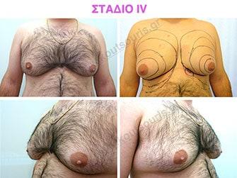 Στάδιο 4: μεγάλη υπερτροφία του αδένα με σημαντικού βαθμού πτώση του μαστού - μεγάλη λιπομαστία.