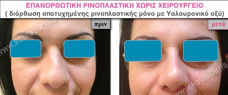 πλαστική μύτης χωρίς χειρουργείο χωρίς νυστέρι ρινοπλαστική χωρίς νυστέρι ρινοπλαστική