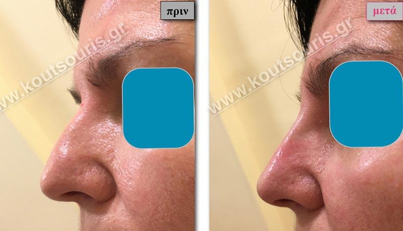 πλαστικη στη μυτη χωρισ νυστερι