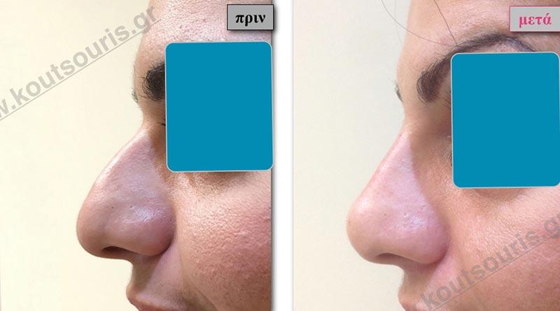 πλαστική στη μυτη πριν μετα χωρις χειρουργείο