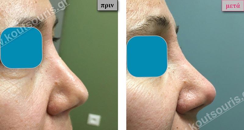 πλαστική στη μυτη χωρις χειρουργιο