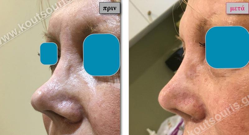 πλαστικη μύτης πριν και μετα