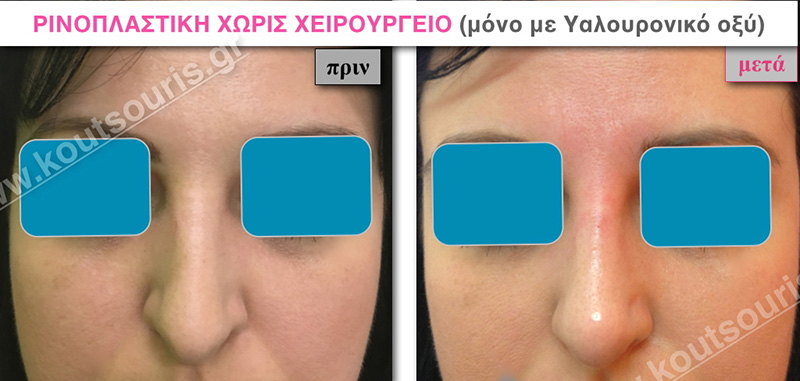rhinoplasty-with-hyaluronic-acid-01