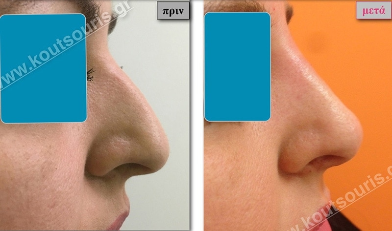 rhinoplasty-with-hyaluronic-acid-02