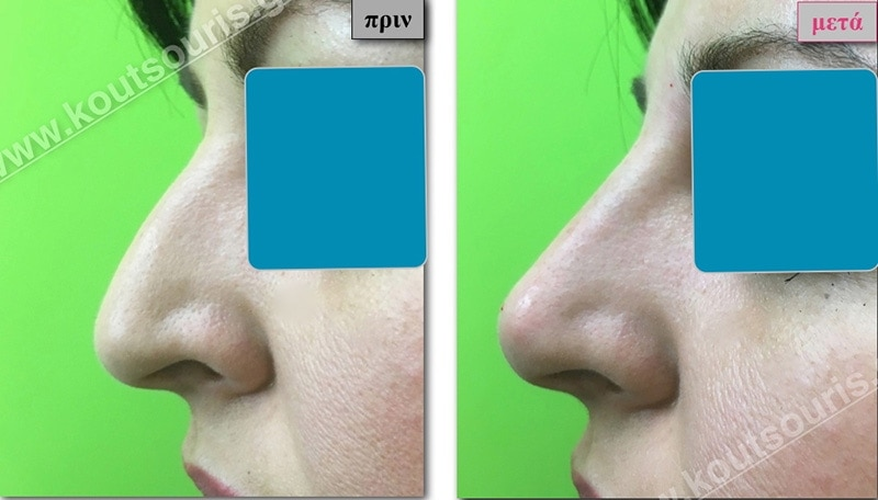rhinoplasty-with-hyaluronic-acid-03
