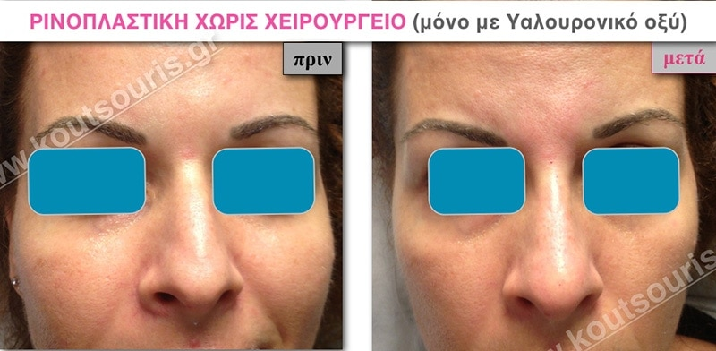 rhinoplasty-with-hyaluronic-acid-04