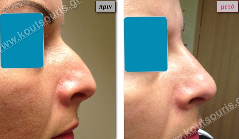 rhinoplasty-with-hyaluronic-acid-05