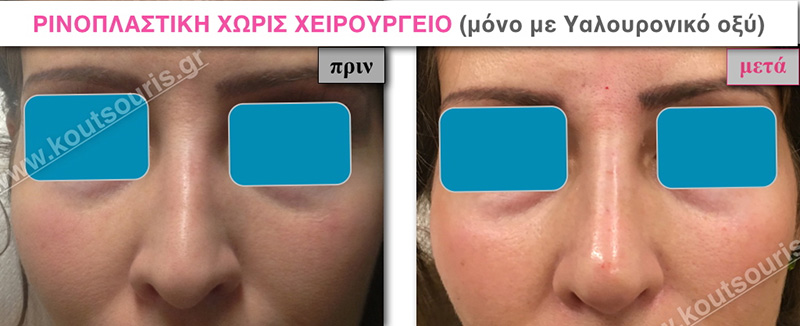 rhinoplasty-with-hyaluronic-acid-07