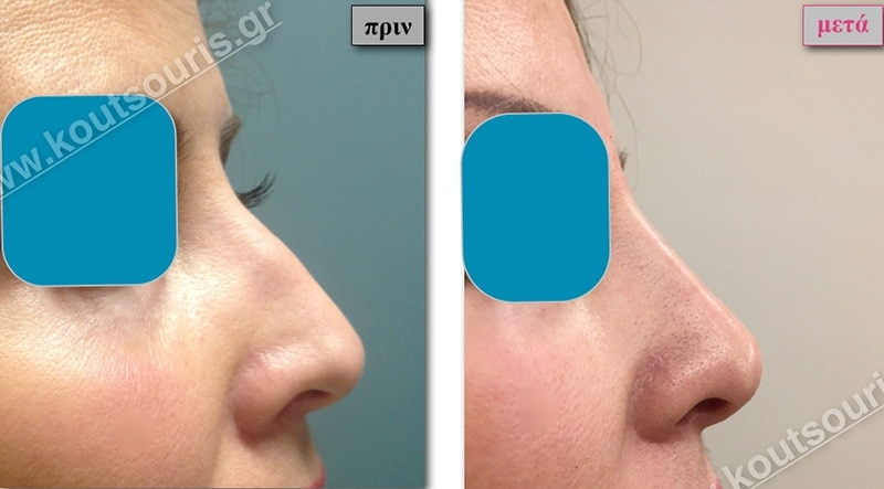 rhinoplasty-with-hyaluronic-acid-08