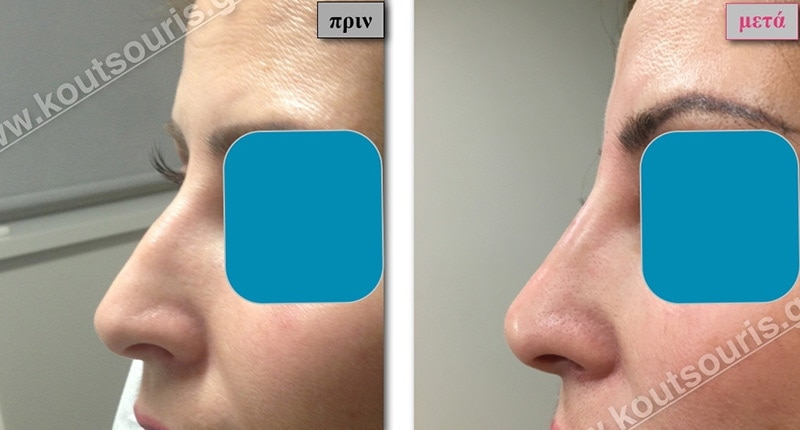 rhinoplasty-with-hyaluronic-acid-09