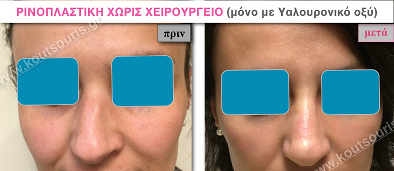 rhinoplasty-with-hyaluronic-acid-10