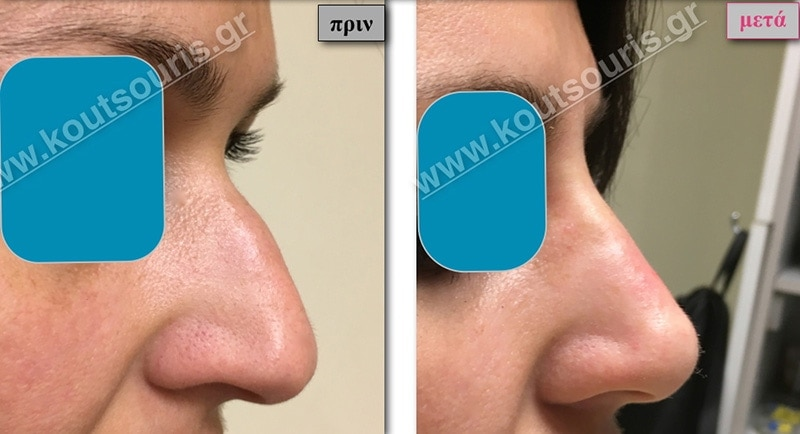 rhinoplasty-with-hyaluronic-acid-11