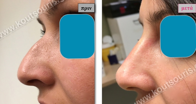 rhinoplasty-with-hyaluronic-acid-12
