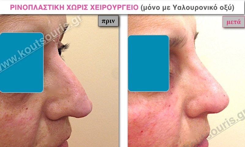 rhinoplasty-with-hyaluronic-acid-13