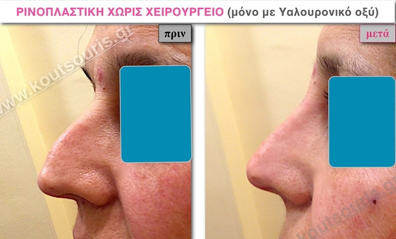 rhinoplasty-with-hyaluronic-acid-14