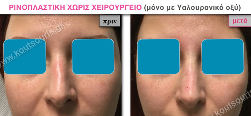 rhinoplasty-with-hyaluronic-acid-15