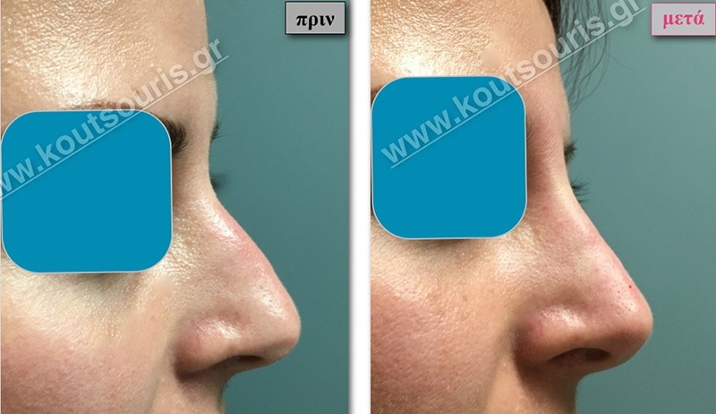 rhinoplasty-with-hyaluronic-acid-16