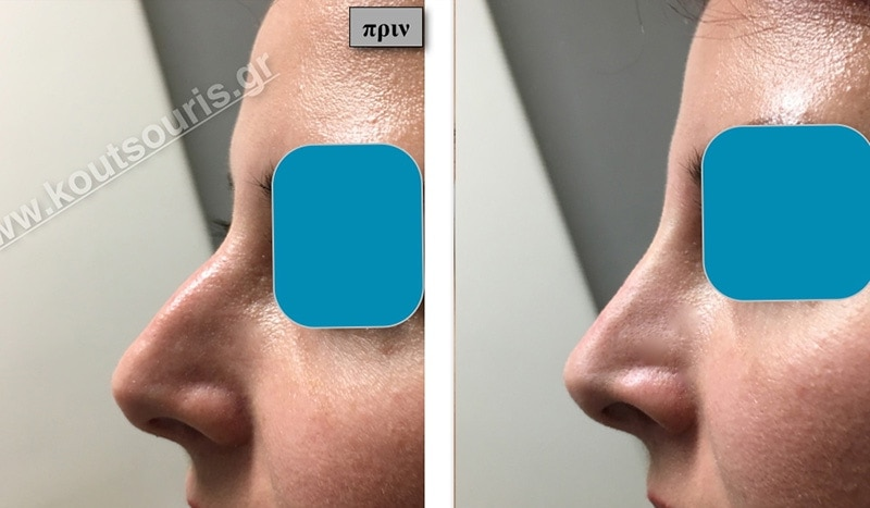 rhinoplasty-with-hyaluronic-acid-17