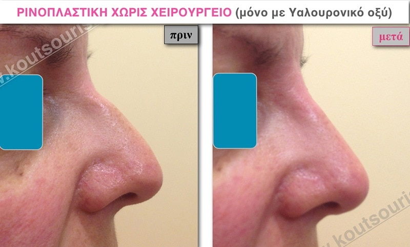 rhinoplasty-with-hyaluronic-acid-18