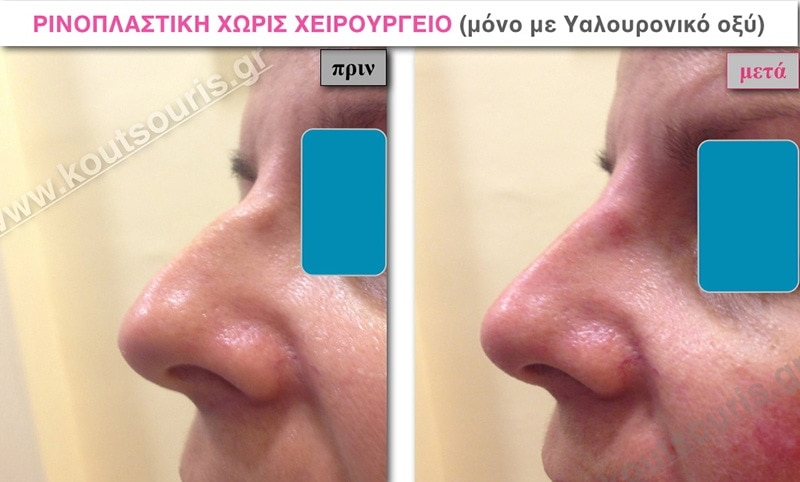 rhinoplasty-with-hyaluronic-acid-19