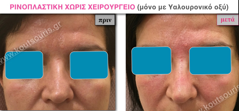 rhinoplasty-with-hyaluronic-acid-20