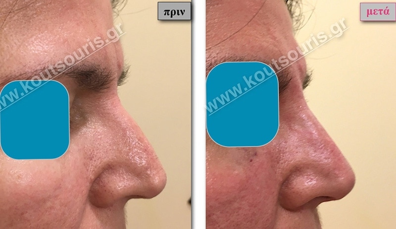 rhinoplasty-with-hyaluronic-acid-21