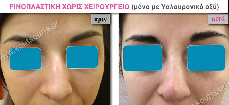 rhinoplasty-with-hyaluronic-acid-23