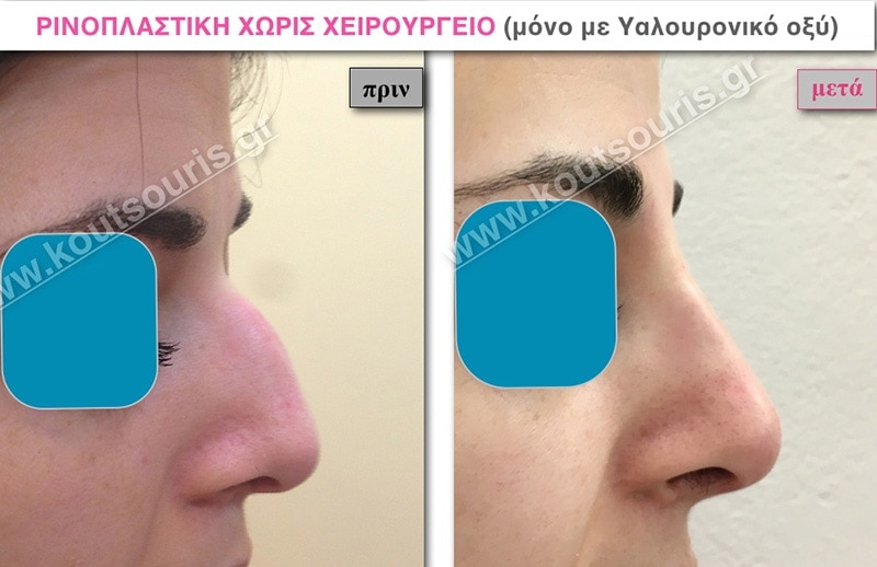 rhinoplasty-with-hyaluronic-acid-24
