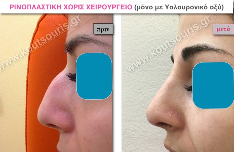 rhinoplasty-with-hyaluronic-acid-25