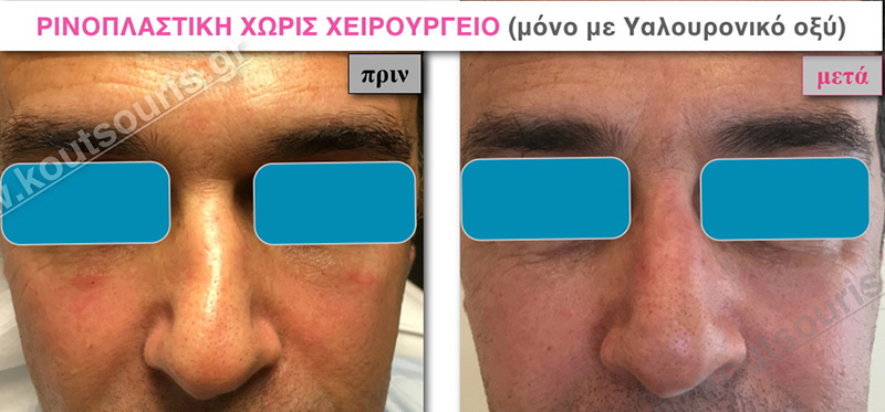 rhinoplasty-with-hyaluronic-acid-26