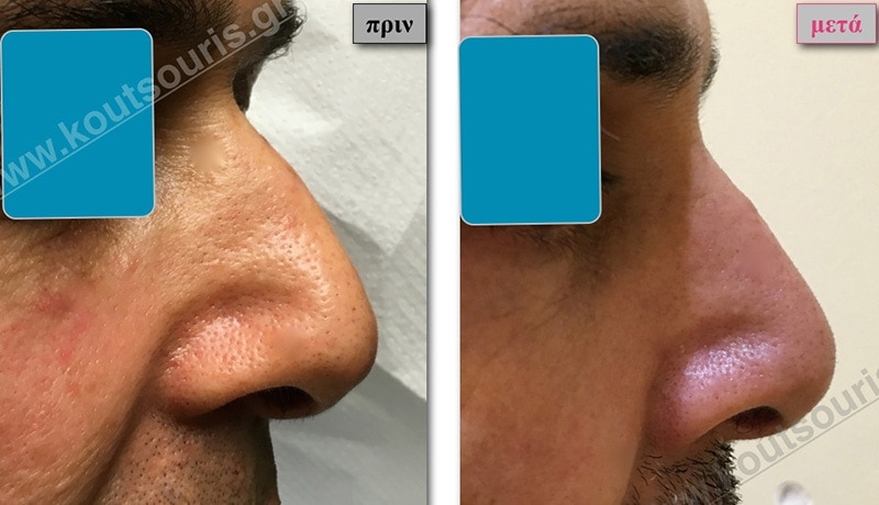 rhinoplasty-with-hyaluronic-acid-27