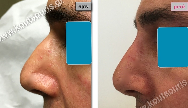 rhinoplasty-with-hyaluronic-acid-28