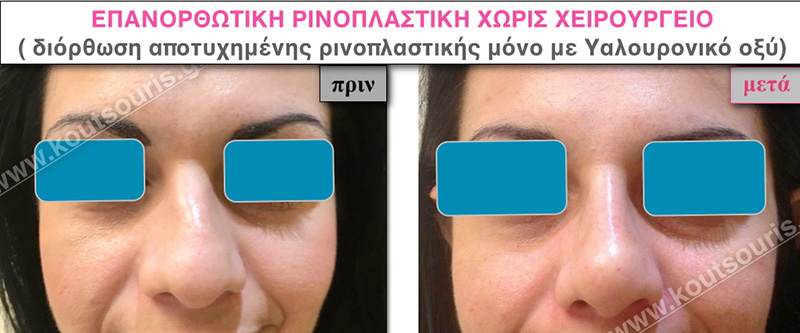 rhinoplasty-with-hyaluronic-acid-29