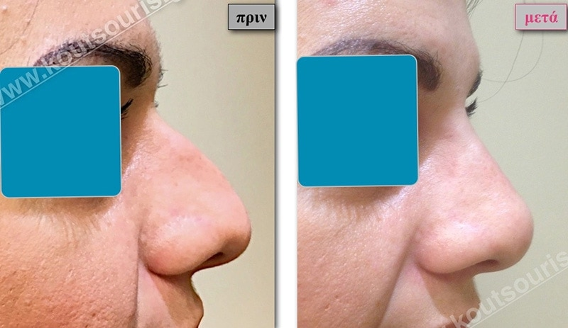 rhinoplasty-with-hyaluronic-acid-30