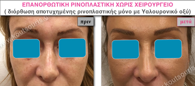 rhinoplasty-with-hyaluronic-acid-32